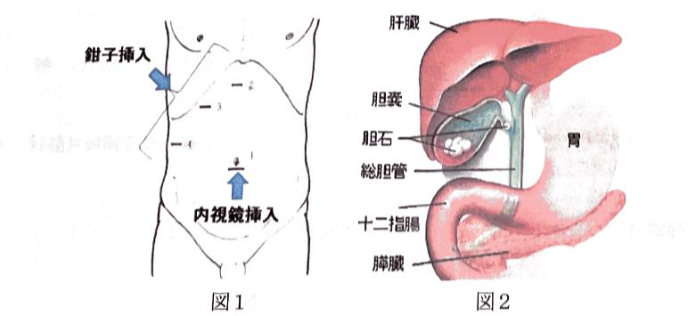 腹腔鏡下胆嚢摘出術