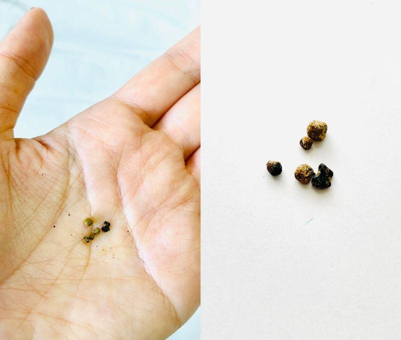 摘出した胆石(胆砂)